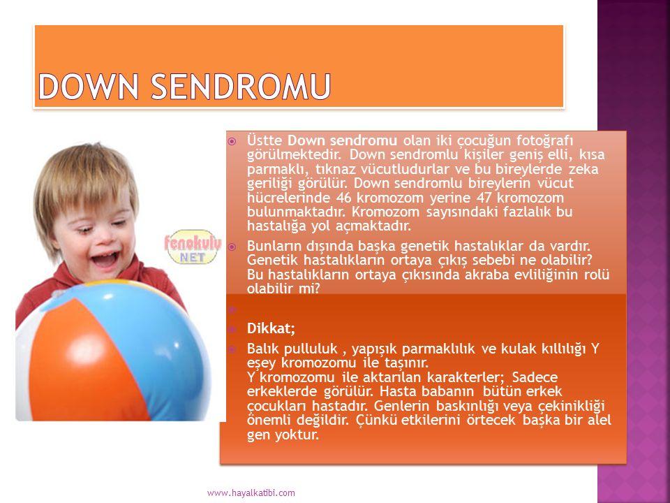  Üstte Down sendromu olan iki çocuğun fotoğrafı görülmektedir. Down sendromlu kişiler geniş elli, kısa parmaklı, tıknaz vücutludurlar ve bu bireylerd