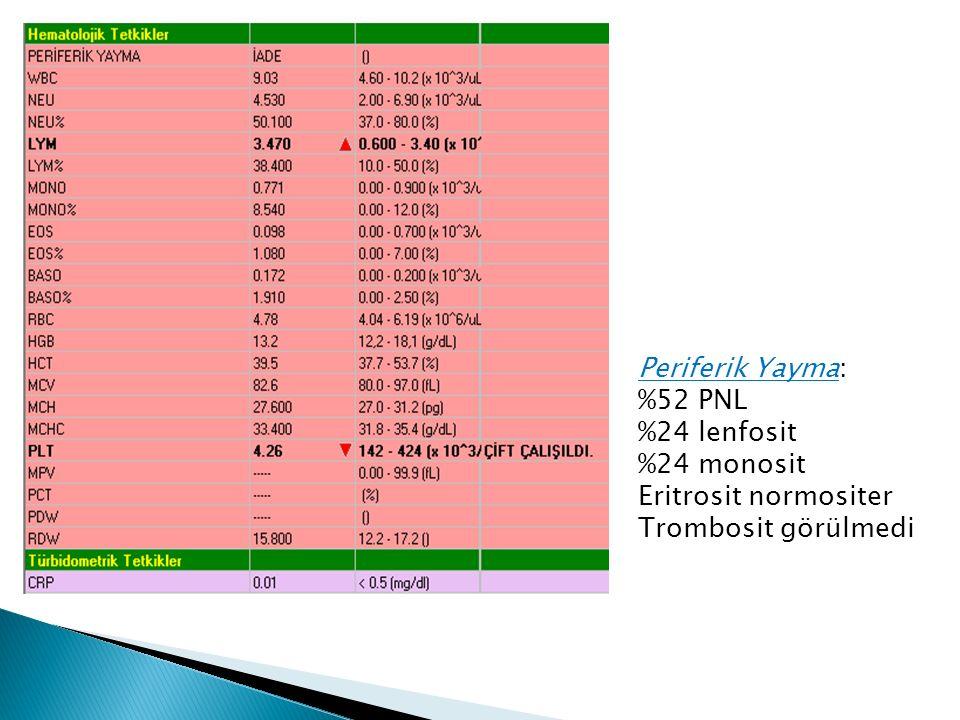 Periferik Yayma: %52 PNL %24 lenfosit %24 monosit Eritrosit normositer Trombosit görülmedi
