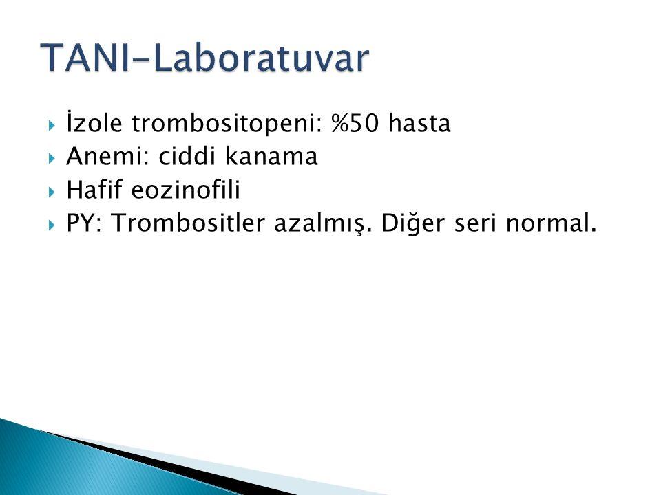  İzole trombositopeni: %50 hasta  Anemi: ciddi kanama  Hafif eozinofili  PY: Trombositler azalmış. Diğer seri normal.