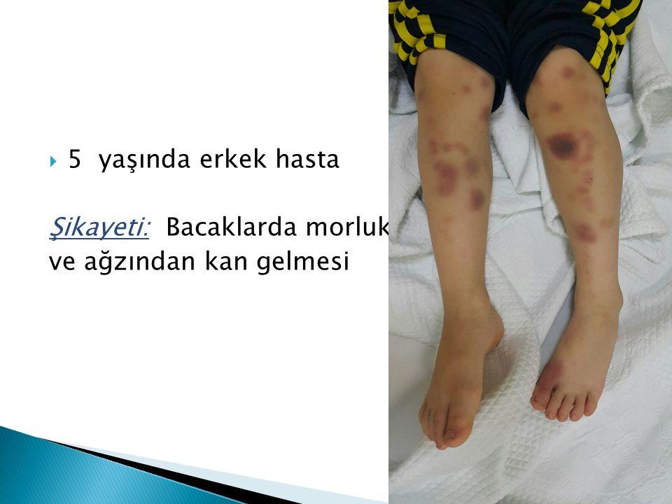  5 yaşında erkek hasta Şikayeti: Bacaklarda morluk ve ağzından kan gelmesi