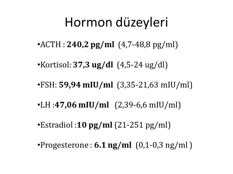 Hormon düzeyleri ACTH : 240,2 pg/ml (4,7-48,8 pg/ml) Kortisol: 37,3 ug/dl (4,5-24 ug/dl) FSH: 59,94 mIU/ml (3,35-21,63 mIU/ml) LH :47,06 mIU/ml (2,39-