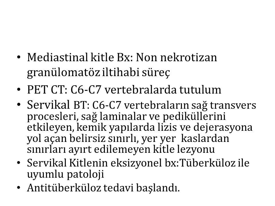 Mediastinal kitle Bx: Non nekrotizan granülomatöz iltihabi süreç PET CT: C6-C7 vertebralarda tutulum Servikal BT: C6-C7 vertebraların sağ transvers pr