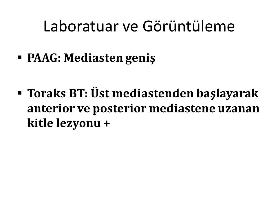 Laboratuar ve Görüntüleme  PAAG: Mediasten geniş  Toraks BT: Üst mediastenden başlayarak anterior ve posterior mediastene uzanan kitle lezyonu +