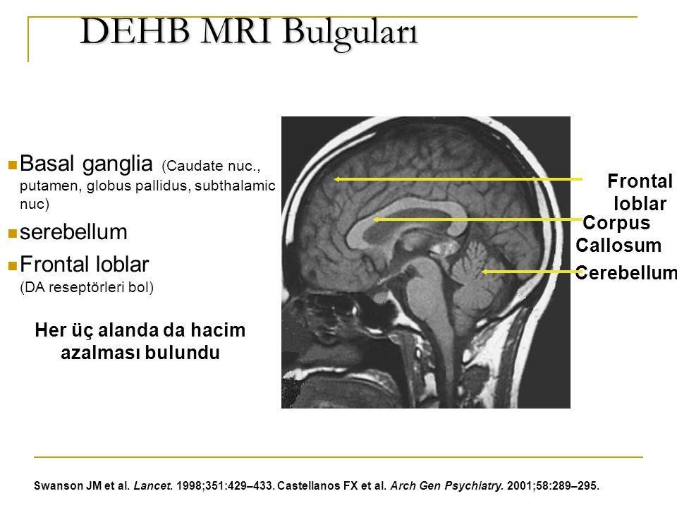 DEHB MRI Bulguları DEHB MRI Bulguları Basal ganglia (Caudate nuc., putamen, globus pallidus, subthalamic nuc) serebellum Frontal loblar (DA reseptörleri bol) Swanson JM et al.