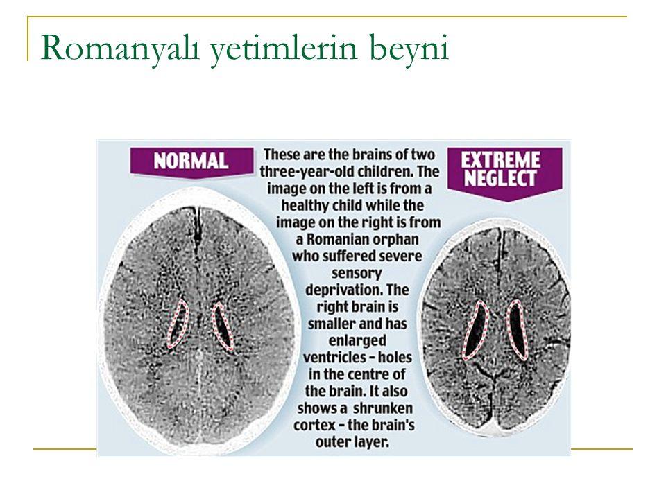 Romanyalı yetimlerin beyni