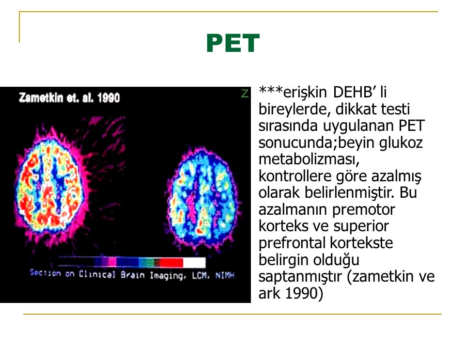 PET z***erişkin DEHB' li bireylerde, dikkat testi sırasında uygulanan PET sonucunda;beyin glukoz metabolizması, kontrollere göre azalmış olarak belirlenmiştir.