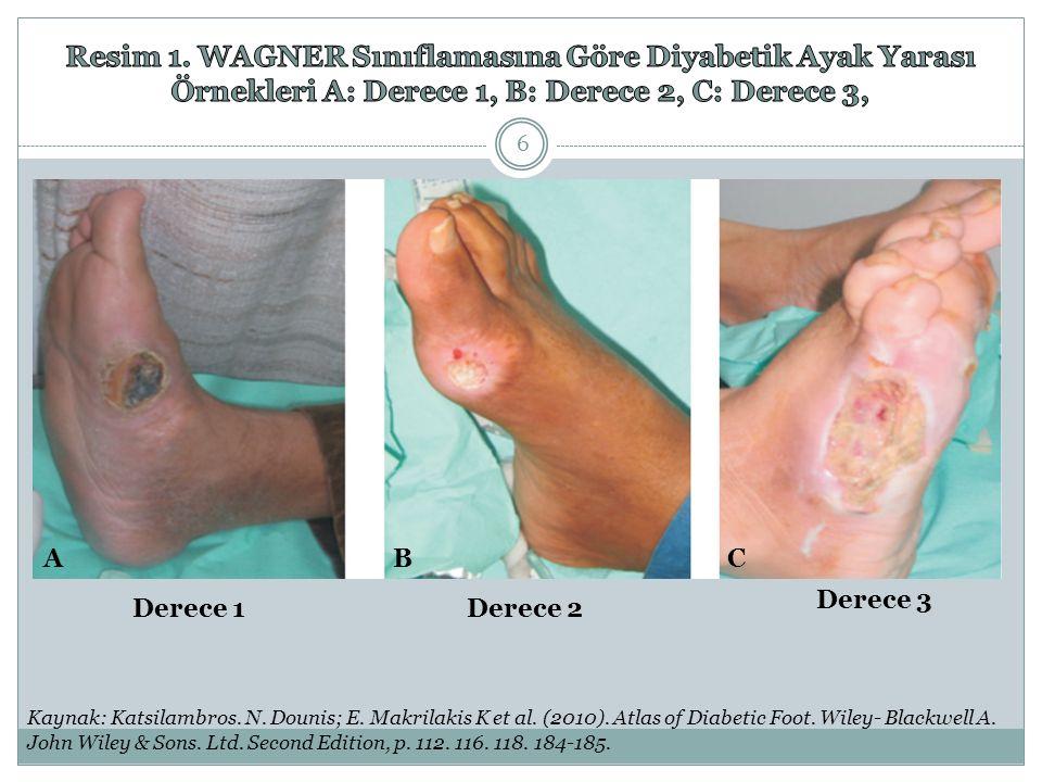 ABC Derece 1Derece 2 Derece 3 Kaynak: Katsilambros. N. Dounis; E. Makrilakis K et al. (2010). Atlas of Diabetic Foot. Wiley- Blackwell A. John Wiley &