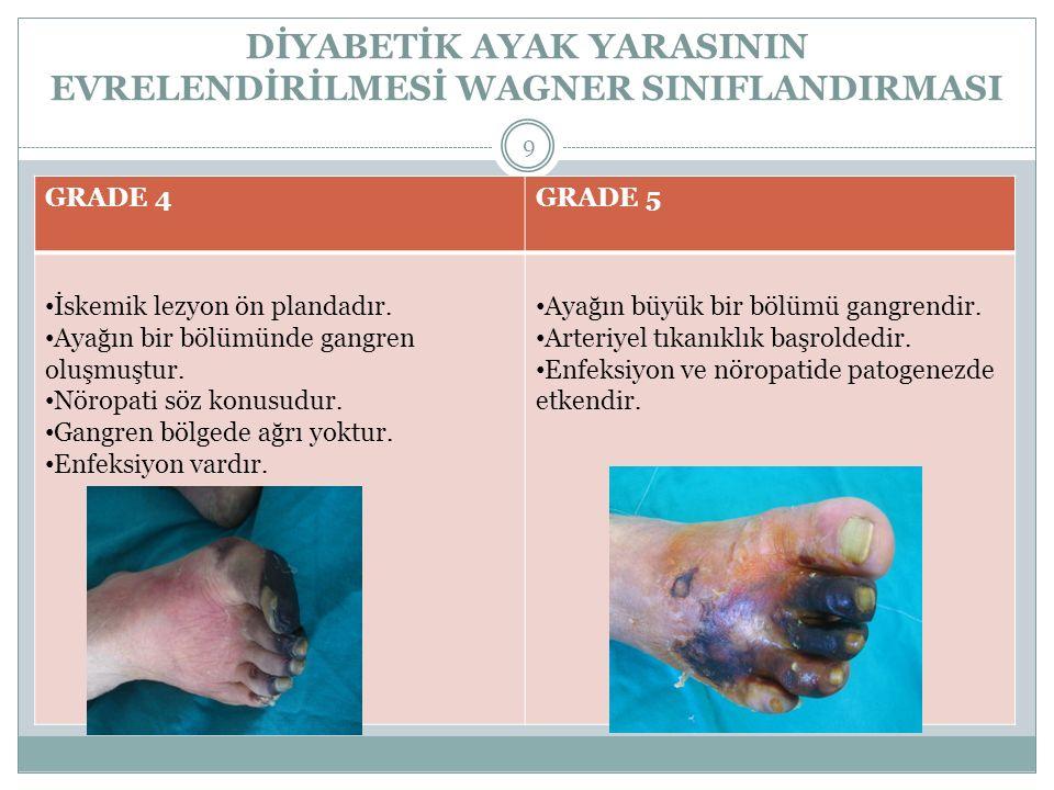 DİYABETİK AYAK YARASININ EVRELENDİRİLMESİ WAGNER SINIFLANDIRMASI 9 GRADE 4GRADE 5 İskemik lezyon ön plandadır. Ayağın bir bölümünde gangren oluşmuştur
