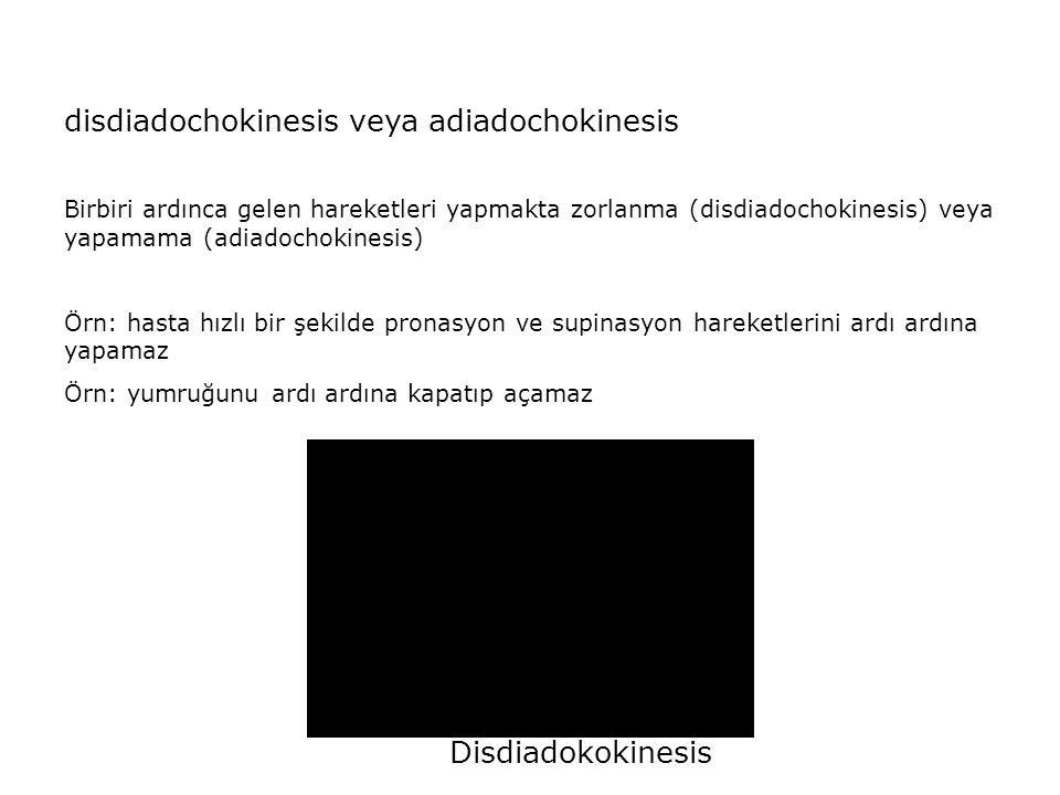 disdiadochokinesis veya adiadochokinesis Birbiri ardınca gelen hareketleri yapmakta zorlanma (disdiadochokinesis) veya yapamama (adiadochokinesis) Örn