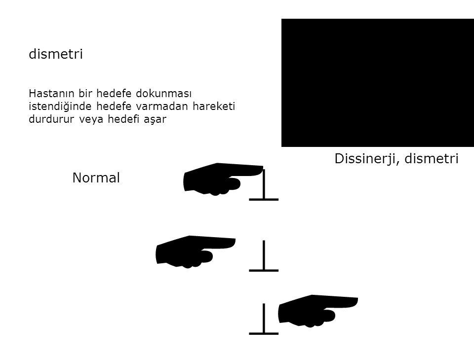 dismetri Hastanın bir hedefe dokunması istendiğinde hedefe varmadan hareketi durdurur veya hedefi aşar  Normal      Dissinerji, dismetri