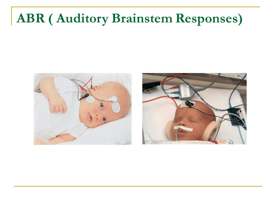 ABR ( Auditory Brainstem Responses)