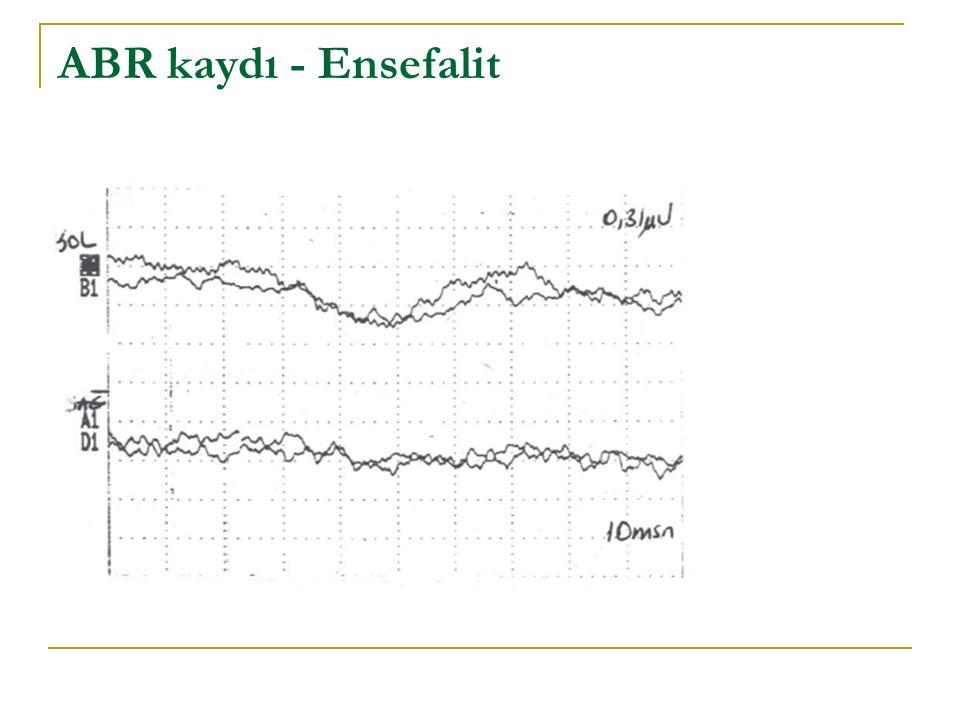ABR kaydı - Ensefalit