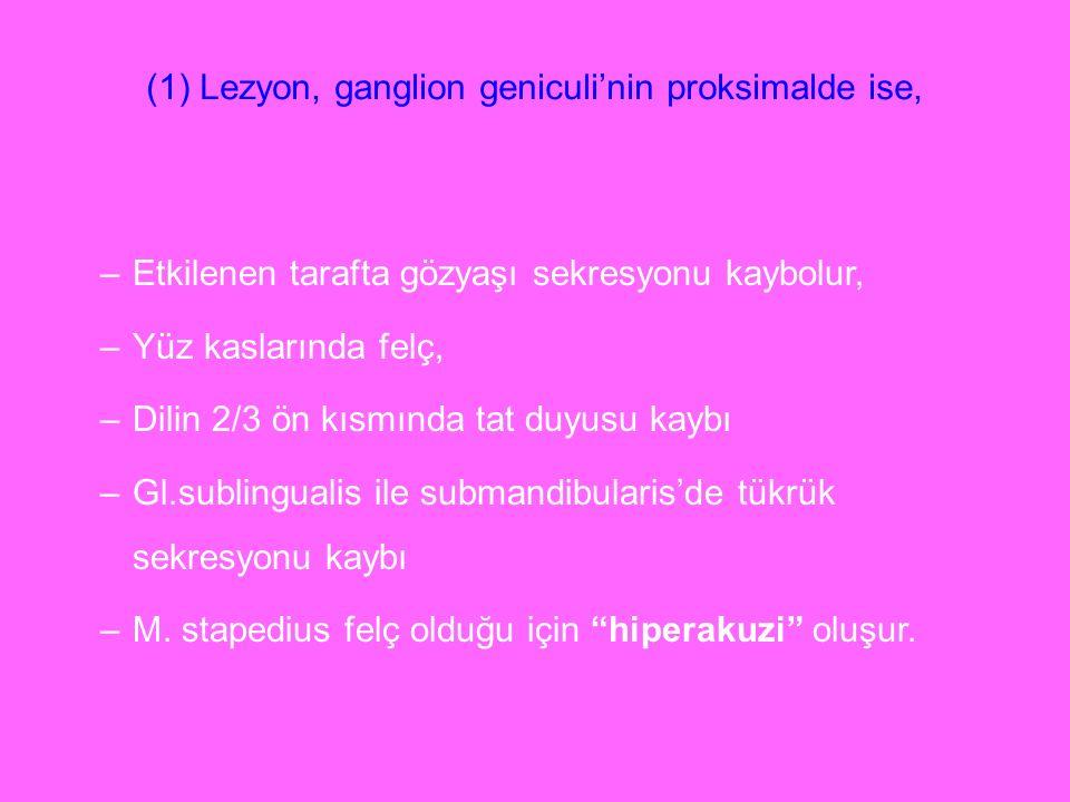 (1) Lezyon, ganglion geniculi'nin proksimalde ise, –Etkilenen tarafta gözyaşı sekresyonu kaybolur, –Yüz kaslarında felç, –Dilin 2/3 ön kısmında tat du