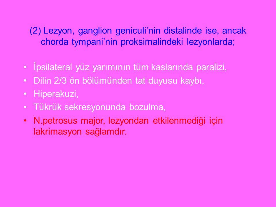 (2) Lezyon, ganglion geniculi'nin distalinde ise, ancak chorda tympani'nin proksimalindeki lezyonlarda; İpsilateral yüz yarımının tüm kaslarında paral