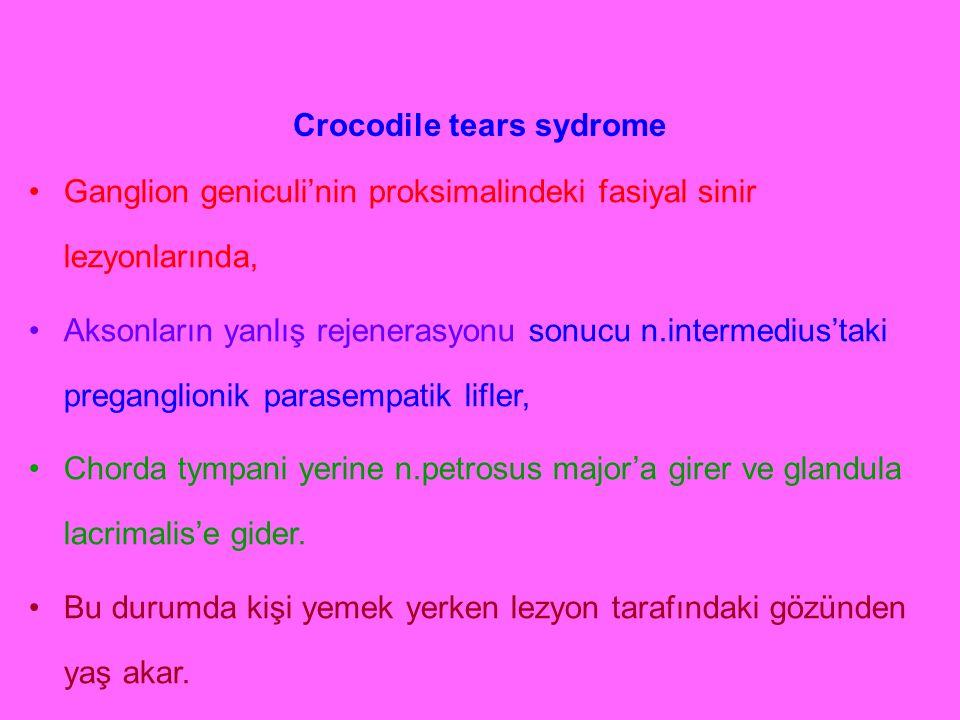 Crocodile tears sydrome Ganglion geniculi'nin proksimalindeki fasiyal sinir lezyonlarında, Aksonların yanlış rejenerasyonu sonucu n.intermedius'taki p