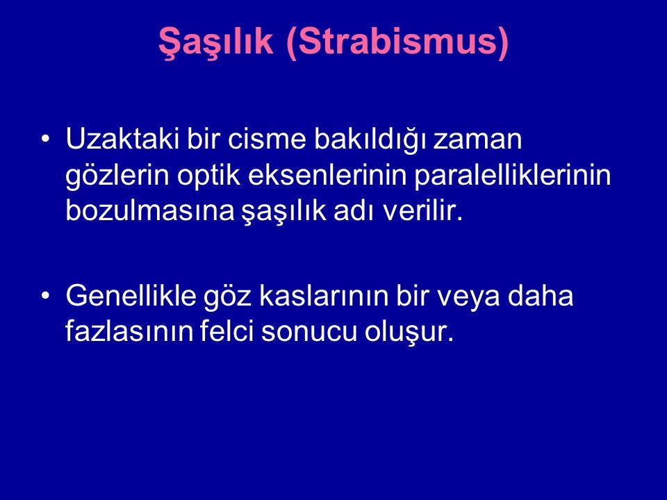 Şaşılık (Strabismus) Uzaktaki bir cisme bakıldığı zaman gözlerin optik eksenlerinin paralelliklerinin bozulmasına şaşılık adı verilir.