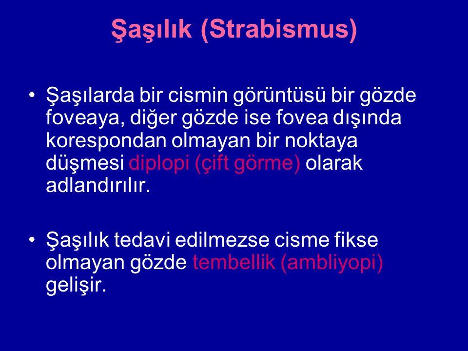 Şaşılık (Strabismus) Şaşılarda bir cismin görüntüsü bir gözde foveaya, diğer gözde ise fovea dışında korespondan olmayan bir noktaya düşmesi diplopi (çift görme) olarak adlandırılır.