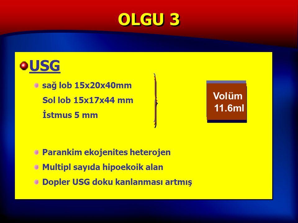 OLGU 3 USG sağ lob 15x20x40mm Sol lob 15x17x44 mm İstmus 5 mm Parankim ekojenites heterojen Multipl sayıda hipoekoik alan Dopler USG doku kanlanması artmış USG sağ lob 15x20x40mm Sol lob 15x17x44 mm İstmus 5 mm Parankim ekojenites heterojen Multipl sayıda hipoekoik alan Dopler USG doku kanlanması artmış Volüm 11.6ml