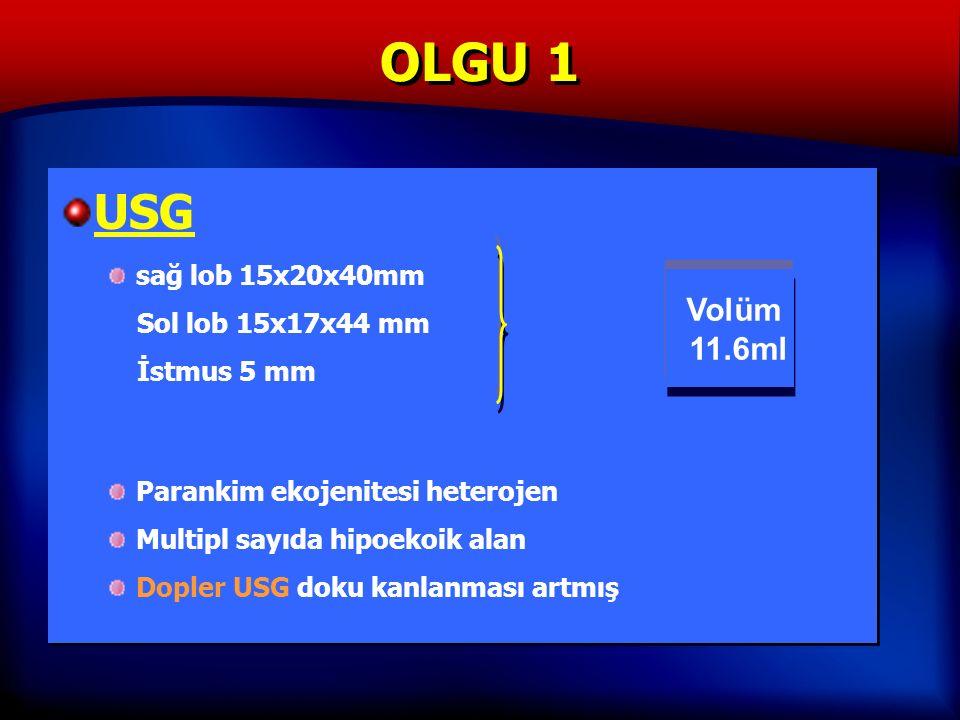 OLGU 1 USG sağ lob 15x20x40mm Sol lob 15x17x44 mm İstmus 5 mm Parankim ekojenitesi heterojen Multipl sayıda hipoekoik alan Dopler USG doku kanlanması artmış USG sağ lob 15x20x40mm Sol lob 15x17x44 mm İstmus 5 mm Parankim ekojenitesi heterojen Multipl sayıda hipoekoik alan Dopler USG doku kanlanması artmış Volüm 11.6ml