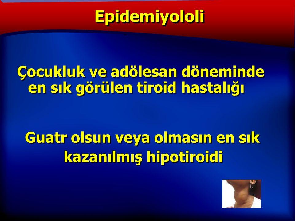 TANIM Epidemiyololi Çocukluk ve adölesan döneminde en sık görülen tiroid hastalığı Guatr olsun veya olmasın en sık kazanılmış hipotiroidi Guatr olsun veya olmasın en sık kazanılmış hipotiroidi