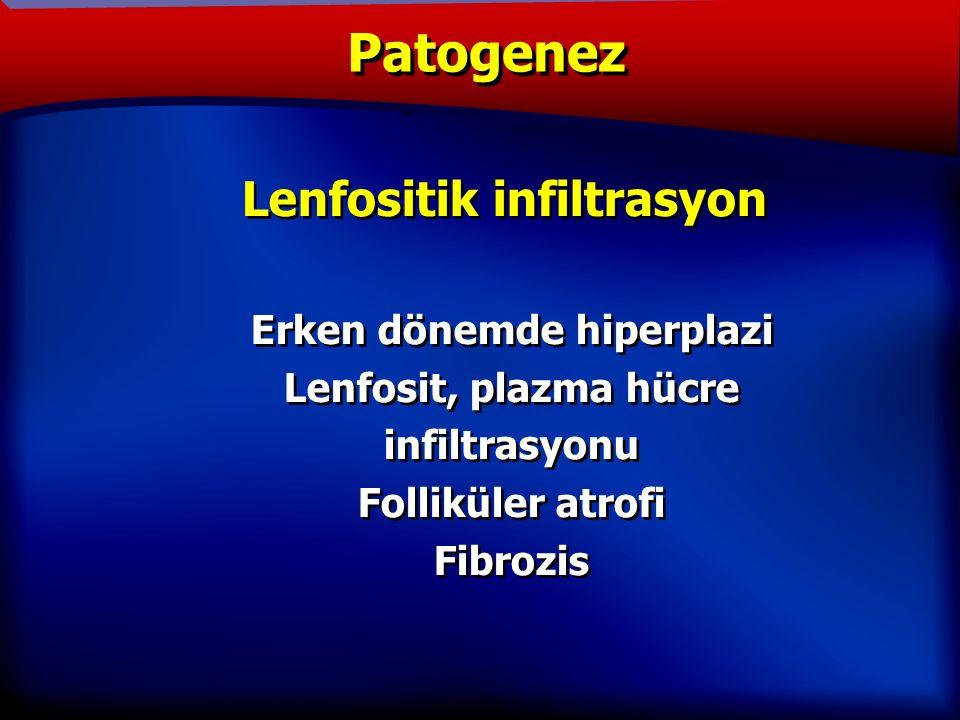 TANIM Lenfositik infiltrasyon Erken dönemde hiperplazi Lenfosit, plazma hücre infiltrasyonu Folliküler atrofi Fibrozis Lenfositik infiltrasyon Erken dönemde hiperplazi Lenfosit, plazma hücre infiltrasyonu Folliküler atrofi Fibrozis Patogenez