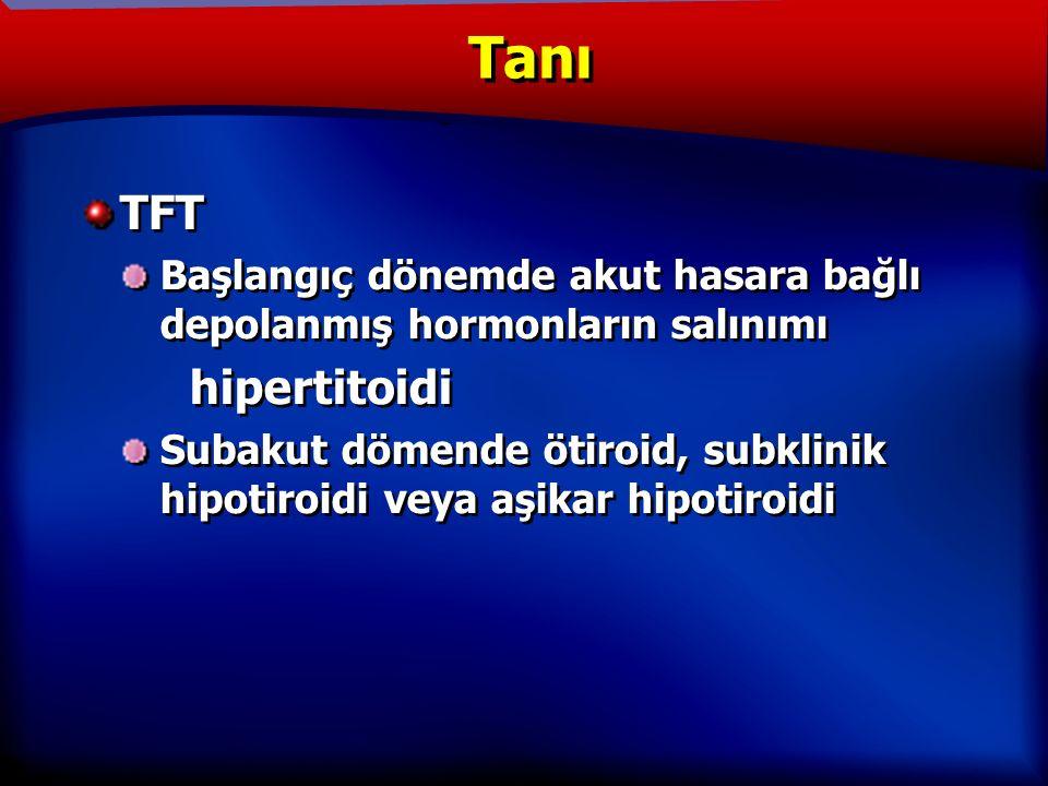 TANIM TFT Başlangıç dönemde akut hasara bağlı depolanmış hormonların salınımı hipertitoidi Subakut dömende ötiroid, subklinik hipotiroidi veya aşikar hipotiroidi TFT Başlangıç dönemde akut hasara bağlı depolanmış hormonların salınımı hipertitoidi Subakut dömende ötiroid, subklinik hipotiroidi veya aşikar hipotiroidi Tanı