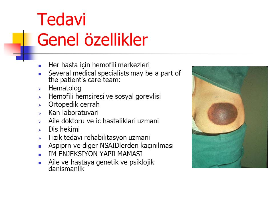 Tedavi Genel özellikler Her hasta için hemofili merkezleri Several medical specialists may be a part of the patient's care team:  Hematolog  Hemofil