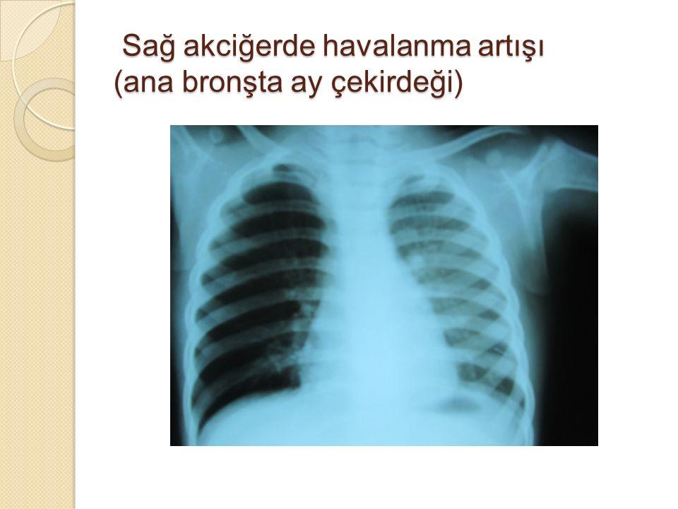 Sağ akciğerde havalanma artışı (ana bronşta ay çekirdeği) Sağ akciğerde havalanma artışı (ana bronşta ay çekirdeği)