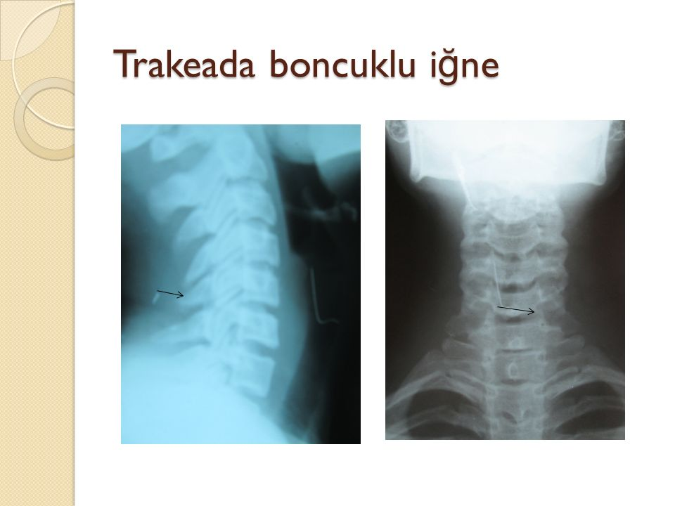 Sol alt lob bronşunda boncuklu i ğ ne (rijit bronkoskopi ile çıkartıldı)
