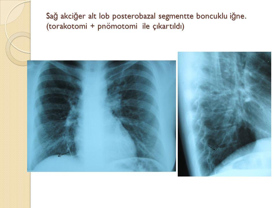Sa ğ akci ğ er alt lob posterobazal segmentte boncuklu i ğ ne. (torakotomi + pnömotomi ile çıkartıldı)
