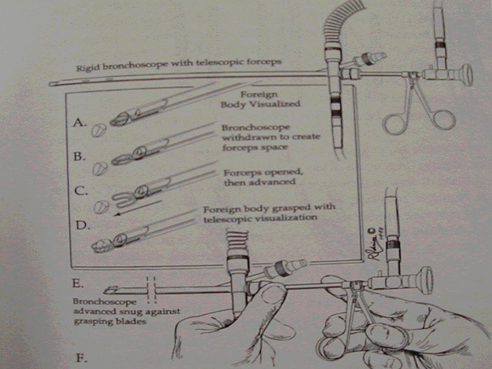 Acil bronkoskopi endikasyonları Yabancı cismin asfiksi oluşturması durumunda Trakeadaki fasulye, nohut gibi bitkisel ve su çekme özelliğine sahip yabancı cisimler.