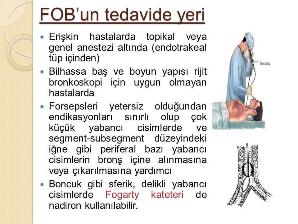 FOB'un tedavide yeri Erişkin hastalarda topikal veya genel anestezi altında (endotrakeal tüp içinden) Bilhassa baş ve boyun yapısı rijit bronkoskopi i