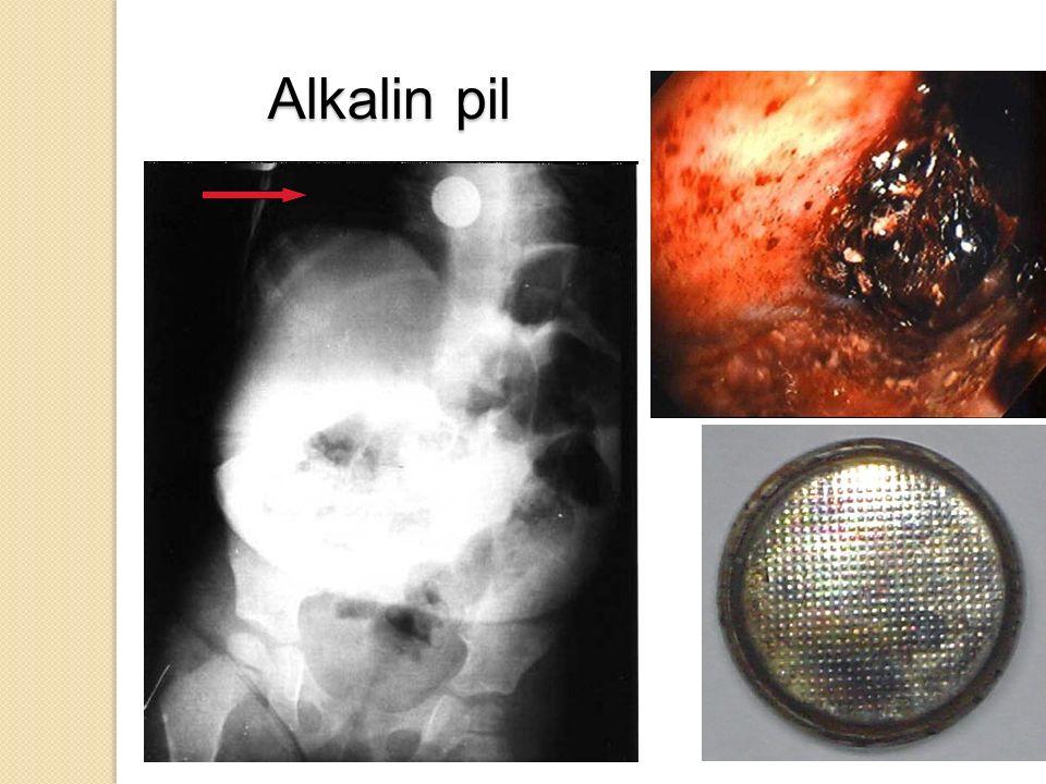 Tavuk kemiği yutan 62 yaşındaki kadın hastada yabancı cismin servikal grafi (a) ve özofagoskopi ile çıkartıldıktan sonraki görünümü (b)