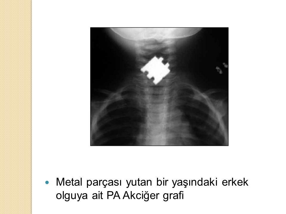 Anahtarlık yutan 2 yaşındaki bir kız çocuğunda PA Akciğer grafi