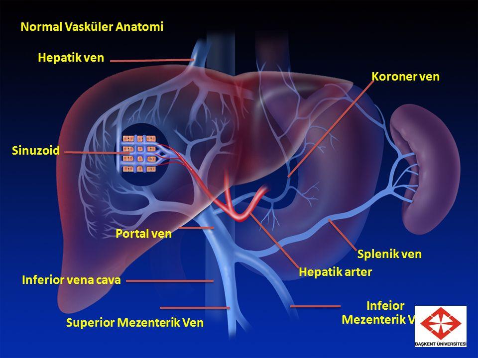 Normal Vasküler Anatomi Hepatik ven Sinuzoid Portal ven Hepatik arter Splenik ven Koroner ven Inferior vena cava Infeior Mezenterik Ven Superior Mezenterik Ven