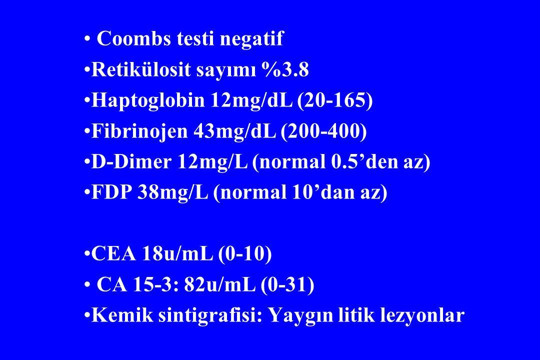 Coombs testi negatif Retikülosit sayımı %3.8 Haptoglobin 12mg/dL (20-165) Fibrinojen 43mg/dL (200-400) D-Dimer 12mg/L (normal 0.5'den az) FDP 38mg/L (