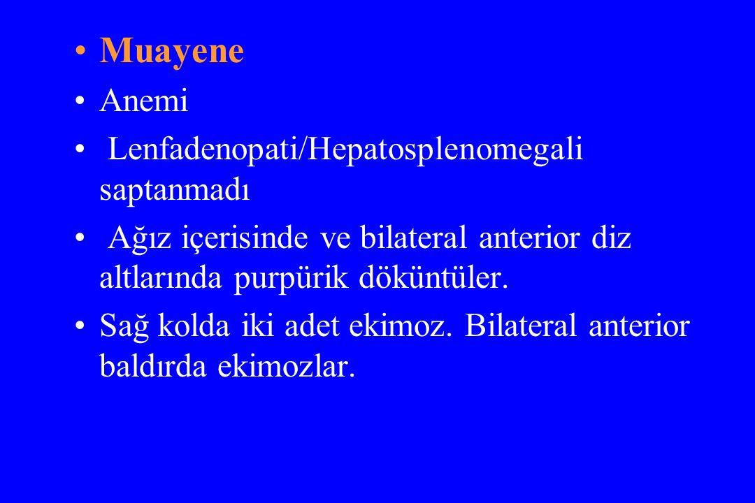 Muayene Anemi Lenfadenopati/Hepatosplenomegali saptanmadı Ağız içerisinde ve bilateral anterior diz altlarında purpürik döküntüler. Sağ kolda iki adet
