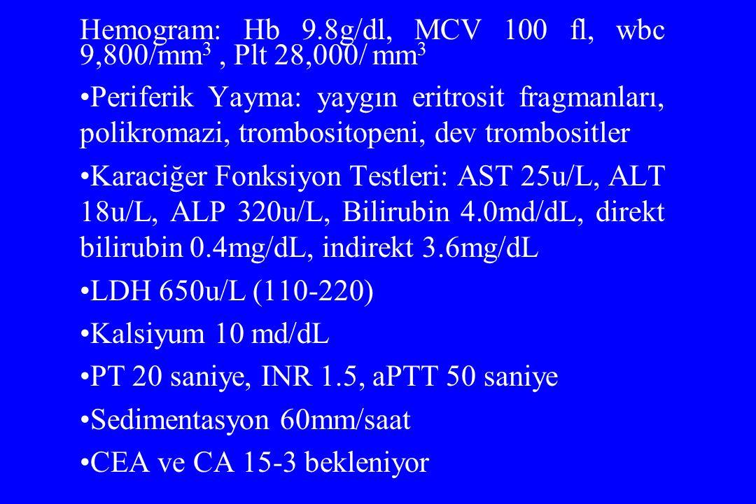 Hemogram: Hb 9.8g/dl, MCV 100 fl, wbc 9,800/mm 3, Plt 28,000/ mm 3 Periferik Yayma: yaygın eritrosit fragmanları, polikromazi, trombositopeni, dev tro