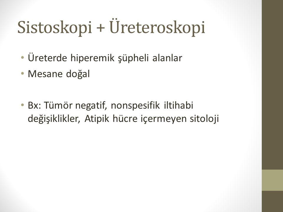 Sistoskopi + Üreteroskopi Üreterde hiperemik şüpheli alanlar Mesane doğal Bx: Tümör negatif, nonspesifik iltihabi değişiklikler, Atipik hücre içermeye