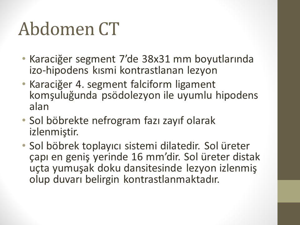 Abdomen CT Karaciğer segment 7'de 38x31 mm boyutlarında izo-hipodens kısmi kontrastlanan lezyon Karaciğer 4. segment falciform ligament komşuluğunda p