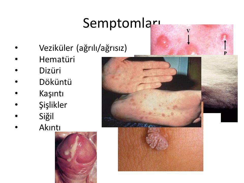 Semptomları Veziküler (ağrılı/ağrısız) Hematüri Dizüri Döküntü Kaşıntı Şişlikler Siğil Akıntı Bubo/LGV