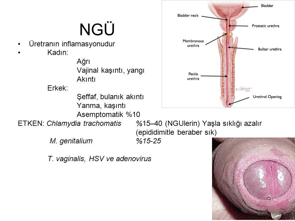 NGÜ Üretranın inflamasyonudur Kadın: Ağrı Vajinal kaşıntı, yangı Akıntı Erkek: Şeffaf, bulanık akıntı Yanma, kaşıntı Asemptomatik %10 ETKEN: Chlamydia