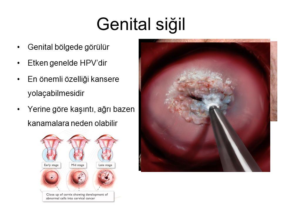 Genital siğil Genital bölgede görülür Etken genelde HPV'dir En önemli özelliği kansere yolaçabilmesidir Yerine göre kaşıntı, ağrı bazen kanamalara ned