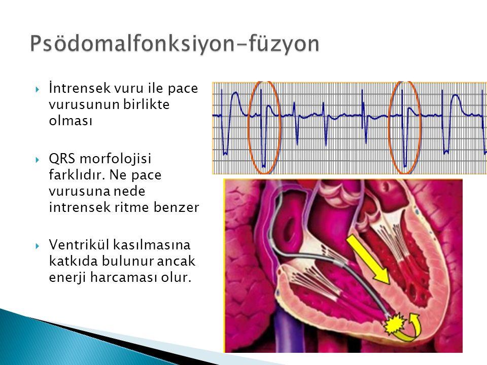  İntrensek vuru ile pace vurusunun birlikte olması  QRS morfolojisi farklıdır.