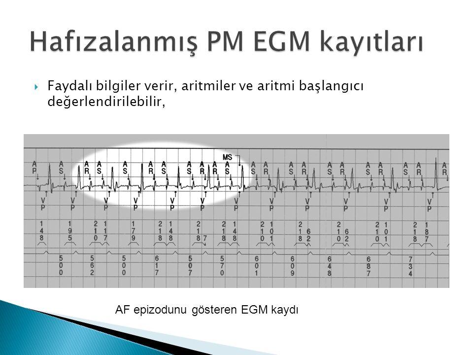  Faydalı bilgiler verir, aritmiler ve aritmi başlangıcı değerlendirilebilir, AF epizodunu gösteren EGM kaydı