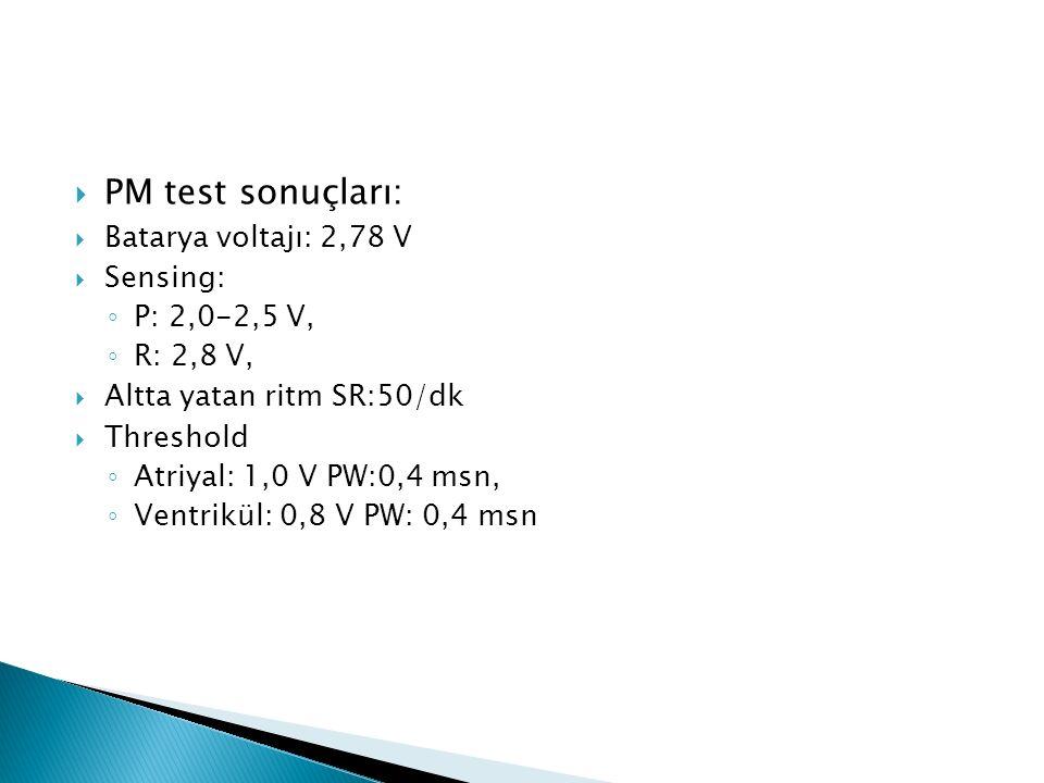  PM test sonuçları:  Batarya voltajı: 2,78 V  Sensing: ◦ P: 2,0-2,5 V, ◦ R: 2,8 V,  Altta yatan ritm SR:50/dk  Threshold ◦ Atriyal: 1,0 V PW:0,4 msn, ◦ Ventrikül: 0,8 V PW: 0,4 msn