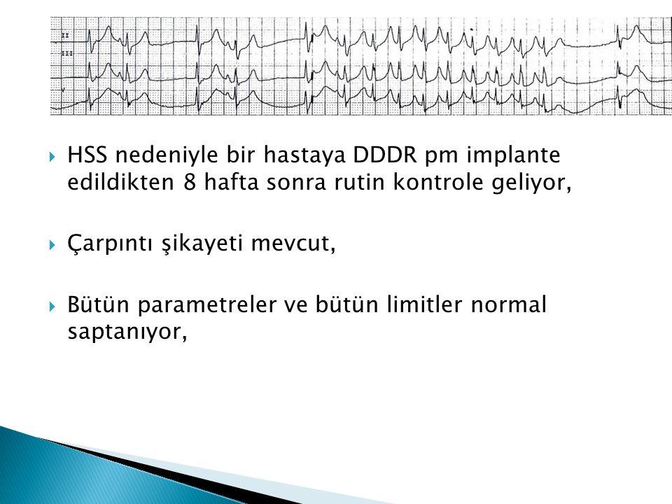  HSS nedeniyle bir hastaya DDDR pm implante edildikten 8 hafta sonra rutin kontrole geliyor,  Çarpıntı şikayeti mevcut,  Bütün parametreler ve bütün limitler normal saptanıyor,