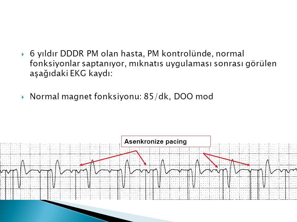  6 yıldır DDDR PM olan hasta, PM kontrolünde, normal fonksiyonlar saptanıyor, mıknatıs uygulaması sonrası görülen aşağıdaki EKG kaydı:  Normal magnet fonksiyonu: 85/dk, DOO mod Asenkronize pacing