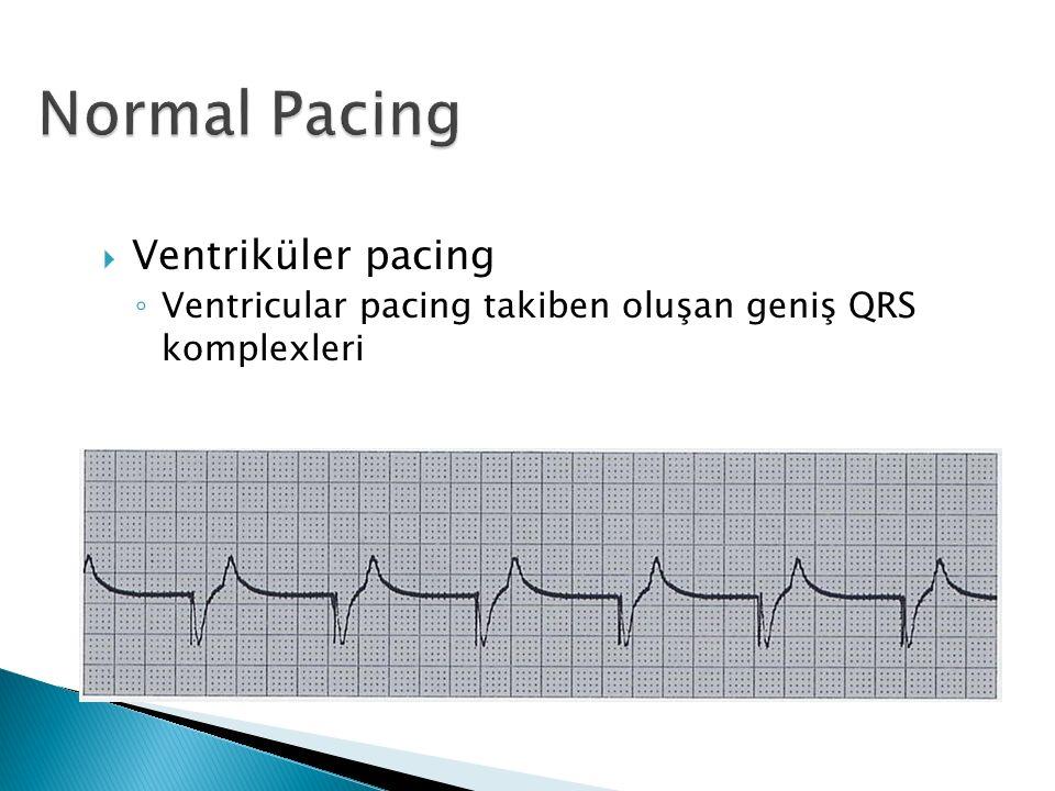  Ventriküler pacing ◦ Ventricular pacing takiben oluşan geniş QRS komplexleri