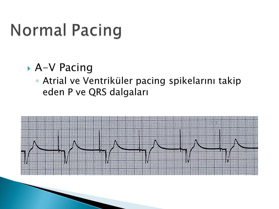  A-V Pacing ◦ Atrial ve Ventriküler pacing spikelarını takip eden P ve QRS dalgaları
